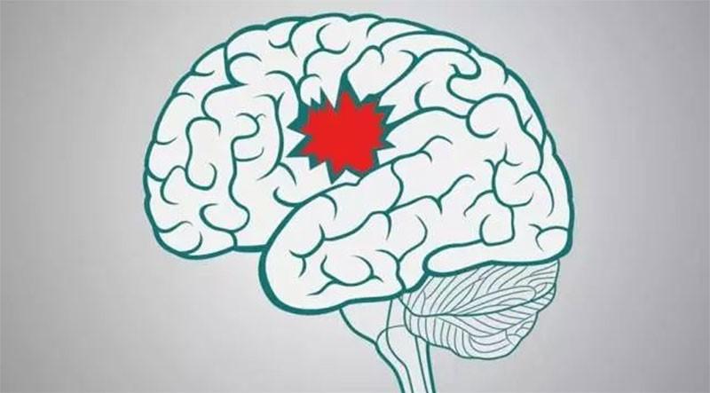 老人肥胖有什么危害,脑血管问题